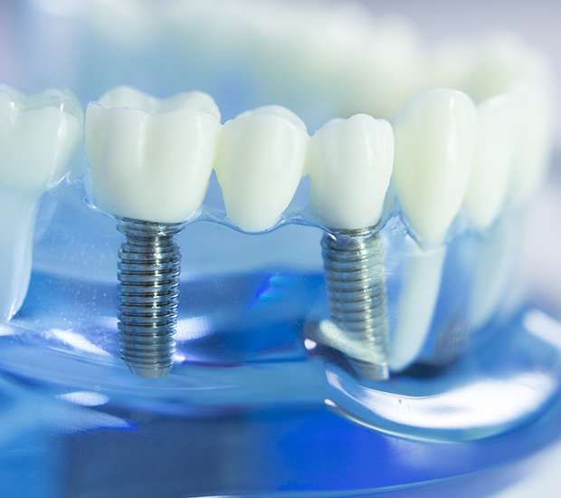 Commerce Dental Implants